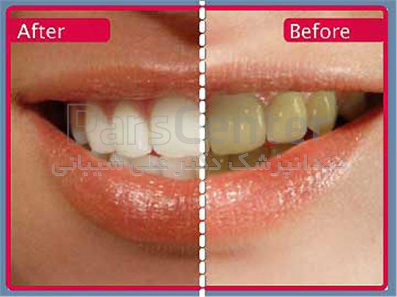 سفید کردن دندان در سعادت آباد