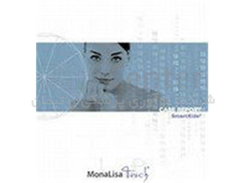 (monalisa touch(model:smartxide touch