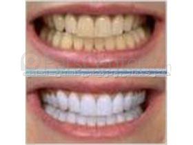 لاک سفید کننده دندان   لاک سفید کننده دندان