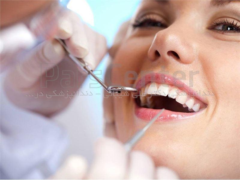 دندانپزشکی در سعادت آباد (دکتر شیبانی)