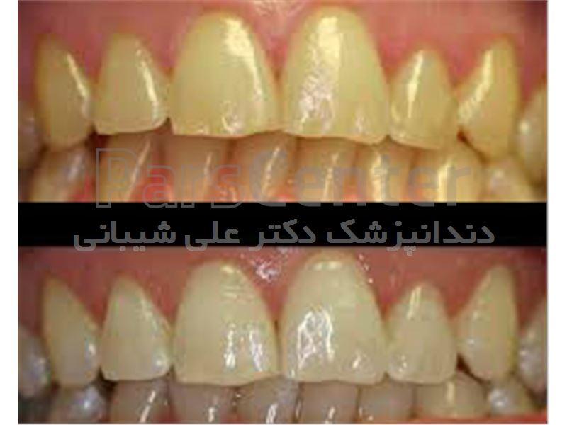 سفید کردن دندان در سعادت آباد،میدان کاج