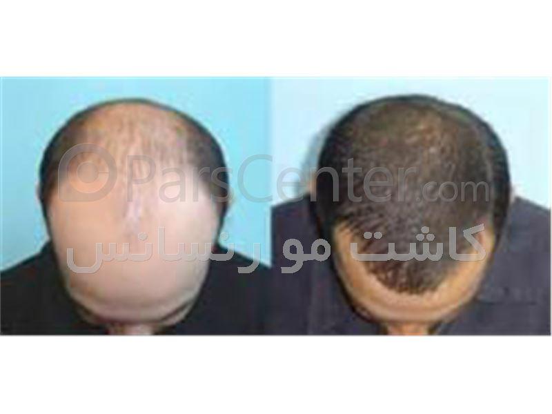 کاشت و ترمیم مو طبیعی - روش جدید