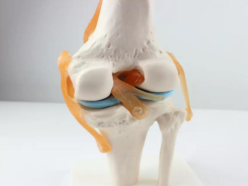 مولاژ مفصل زانو