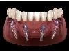 کلینیک دندانپزشکی و ایمپلنت دکتر بزرگ