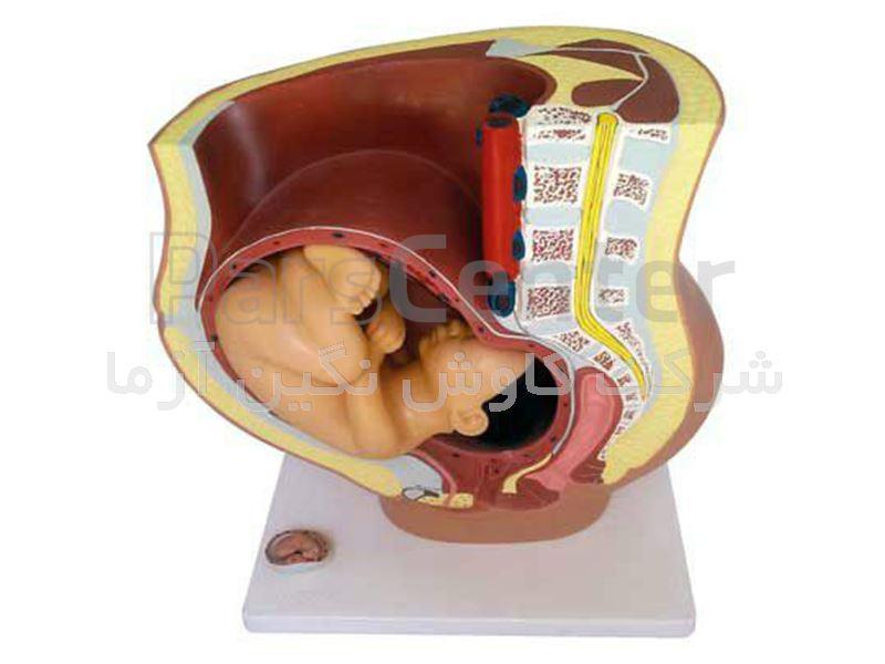 مانکن تمرین زایمان طبیعی با دو جنین و جفت