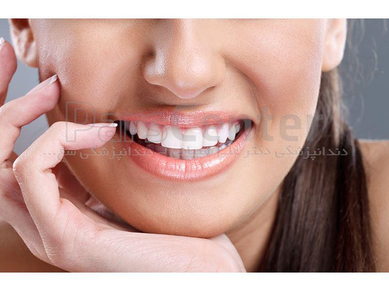 دندانپزشکی سعادت آباد میدان کاج