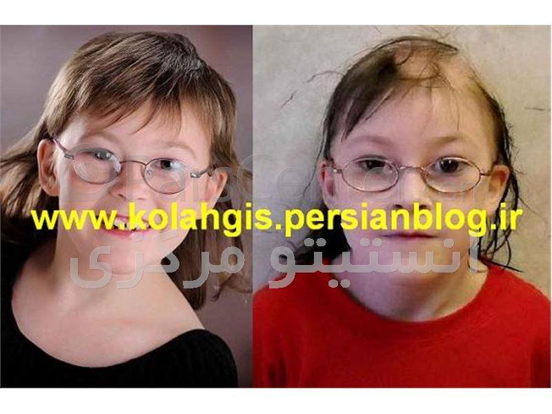 فروش سفارشی کلاه گیس دخترانه و کلاه گیس پسرانه  فقط از موی طبیعی انسان برای دختران و پسران