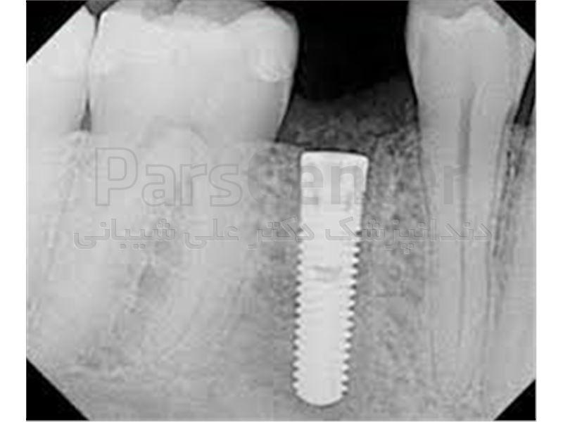 جراحی کاشت دندان (ایمپلنت) در سعادت آباد،میدان کاج