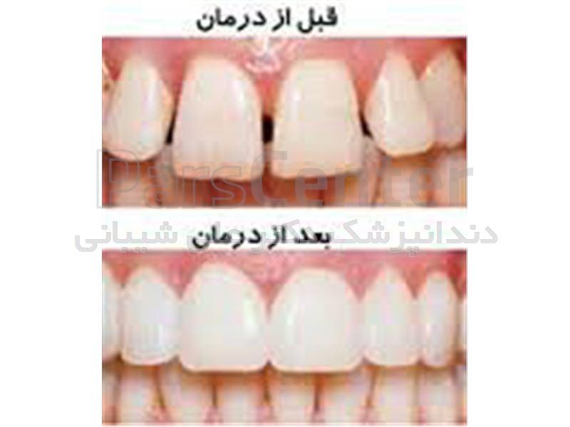 ترمیم زیبایی دندان در سعادت آباد،میدان کاج