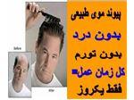 کاشت مو | ترمیم مو | پیوند مو طبیعی